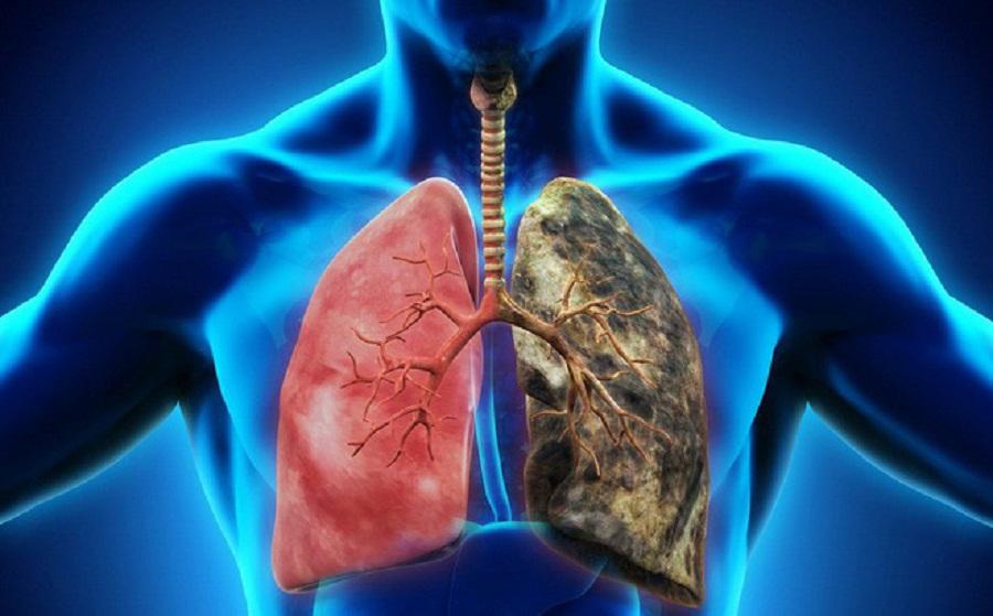 Bệnh lao phổi thường là một căn bệnh phổ biến tại Việt Nam