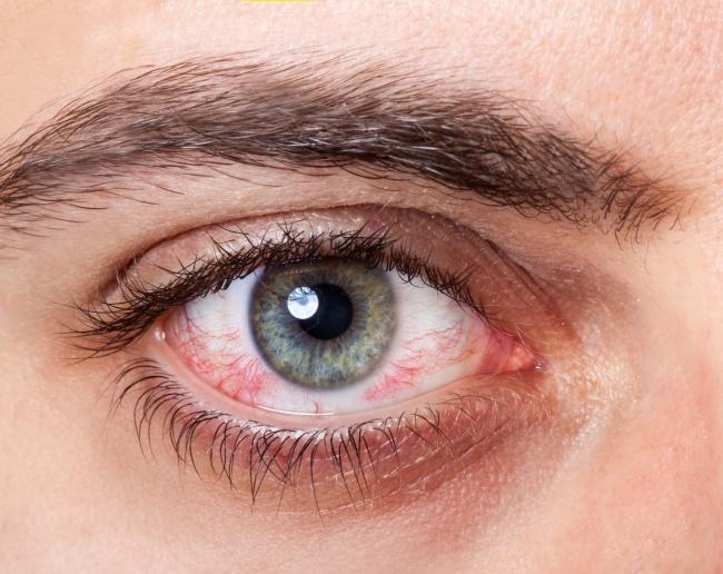 Các vòng trắng quanh giác mạc là biểu hiện của bệnh mắt