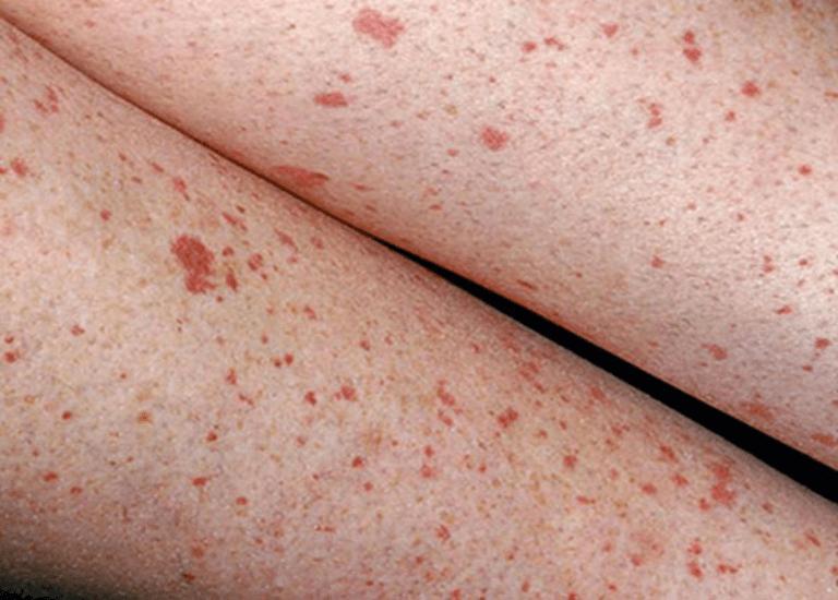 Xuất hiện nhiều nốt đỏ dưới da dễ bị lầm tưởng với phát ban